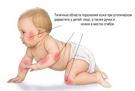 Типичные области поражения дерматитом у детей