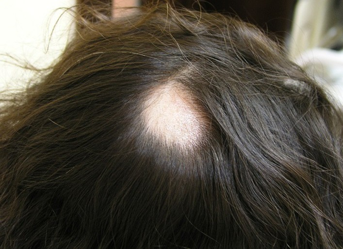 Гнездная алопеция у женщин: причины появления и лечение гнездовой ...