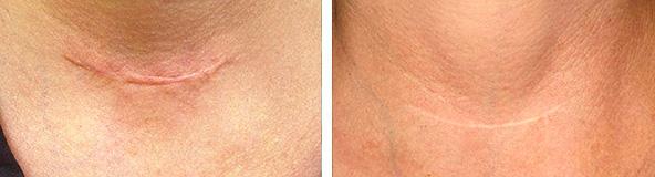 Келоидные рубцы: причины образований, методы лечения и удаления ...