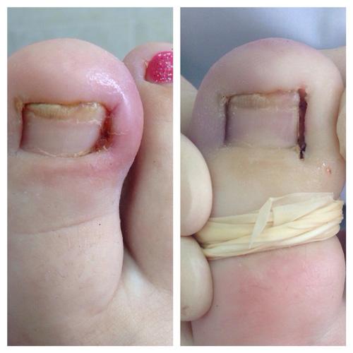 Удаление вросшего ногтя фото