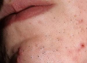 Угревая сыпь на лице: причины заболевания и способы лечения
