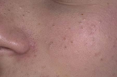 Угри на лице: причины появления, методы лечения и удаления