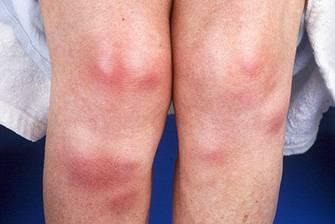 Узловатая эритема - фото, на ногах, лечение и причины