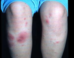 Узловатая эритема: симптомы, причины и лечение | Народные средства ...