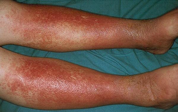 Варикозный(венозный) дерматит нижних конечностей: лечение(мази ...