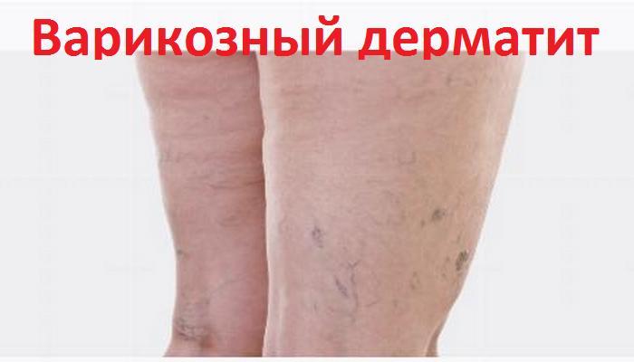 Варикозный дерматит нижних конечностей: лечение :: HelsBaby.ru