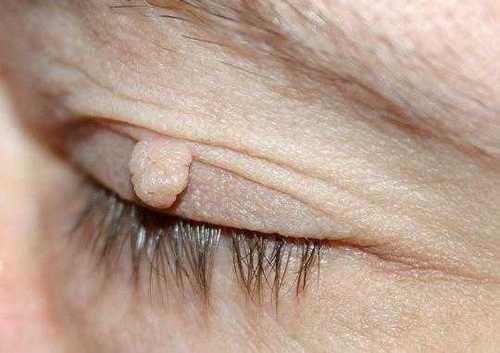 Папилломы на лице: причины, удаление, лечение (медикаментозное ...