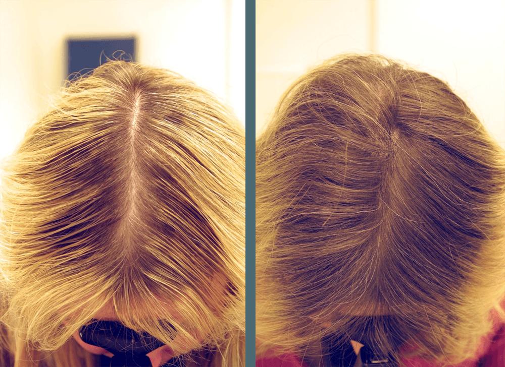 Как остановить выпадение волос. — Сообщество парикмахеров