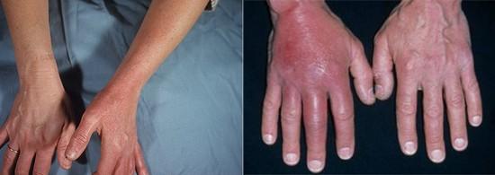 Рожистое воспаление (Рожа) на ноге, руке, лице. Возбудитель ...