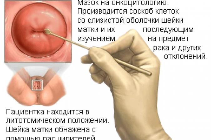 Как проявляется папиллома матки? Как выглядит Папилломатоз в ...