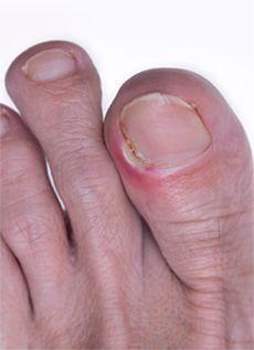 вросшие ногти на ногах фото