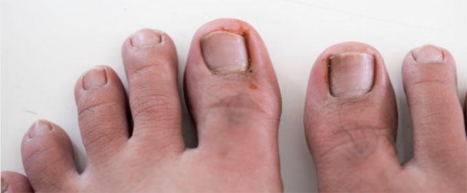 вросший ноготь на большом пальце ноги фото
