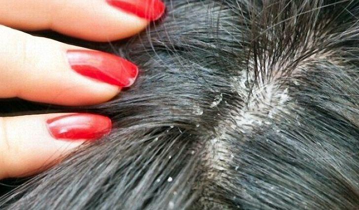 Зуд головы и выпадение волос причины
