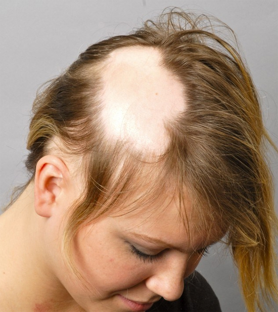 Выпадение волос, облысение: симптомы, причины болезни, фото ...