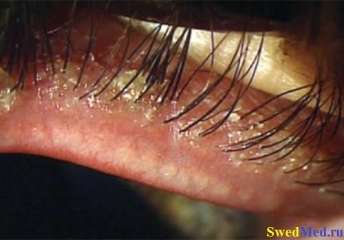 Зуд в глазах и веках, возможные причины и лечение