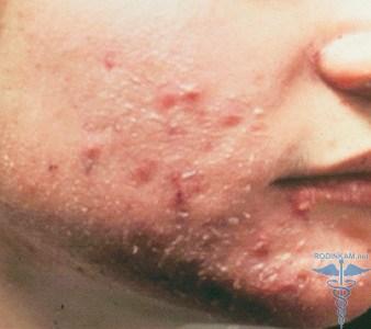 Инфекционный дерматит: фото, причины, симптомы и лечение