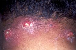 Как выглядит фурункул на шее, диагностика, лечение
