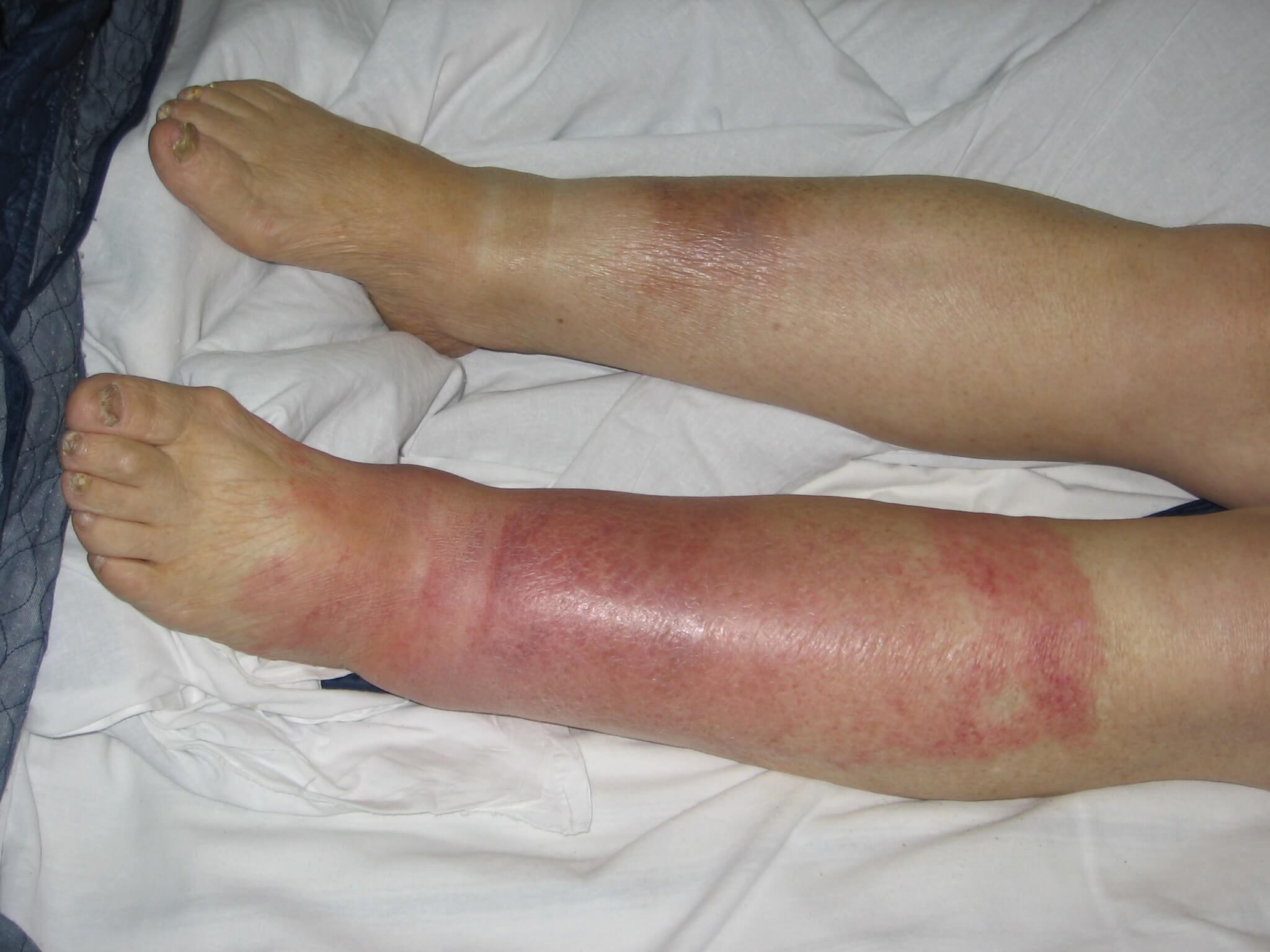 Рожистое воспаление: симптомы, профилактика, лечение