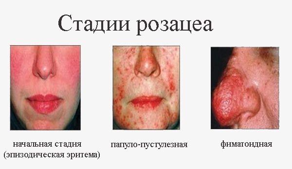 Причины, симптомы и лечение розацеа на лице - препараты, лазер