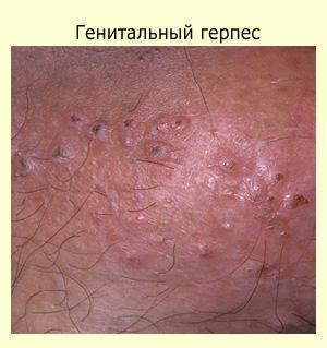 Волдыри, зуд половых органов и другие симптомы генитального герпеса