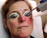 Розацеа на лице: симптомы и лечение препаратами розовых угрей на ...