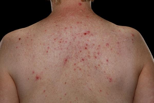 Угри (акне) на спине: причины появления, лечение препаратами и ...