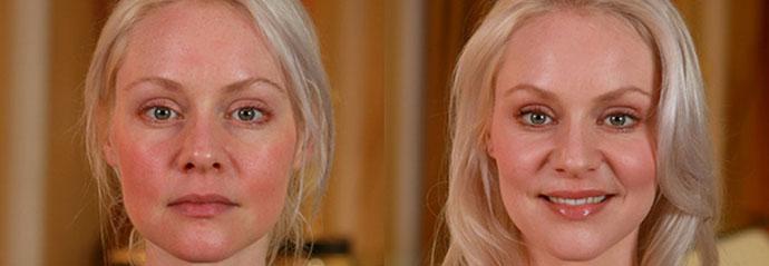 Лечение розацеа на лице | APTEKINS.RU