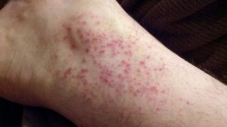 Дерматит на ногах: лечение с помощью мази