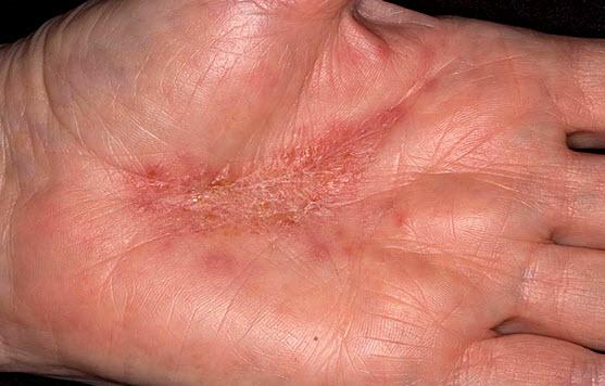 Дерматит на руках: виды, причины, симптомы и лечение + народные ...