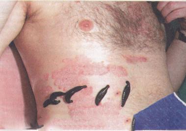 Лечение псориаза пиявками: как действуют на болезнь и насколько ...