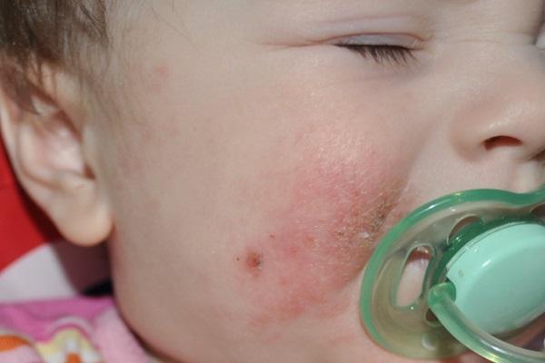 Стрептодермия у детей: фото, симптомы, причины, лечение