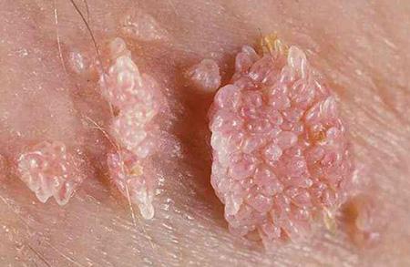 Папилломы, образовавшиеся на коже человека