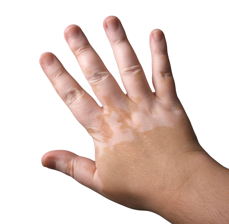 Белое родимое пятно: причины, лечение, удаление