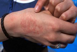 Сыпь на коже рук