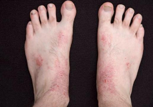 Лечение дерматита на ногах: фото, симптомы, причины, народные ...