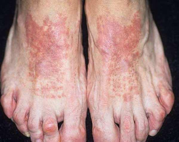 Дерматит на ногах - фото, как лечить