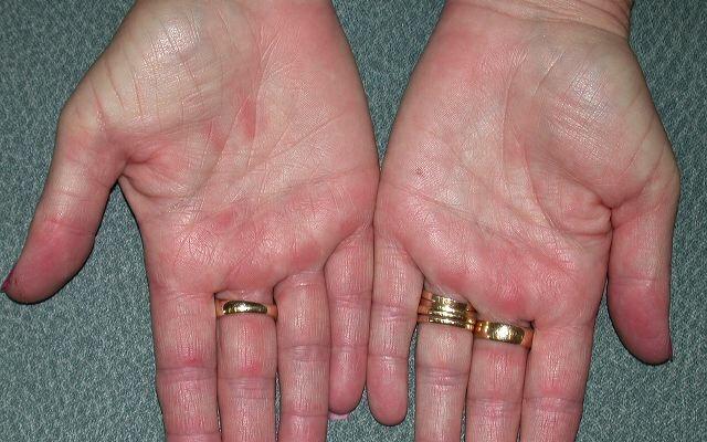 Прорыв в лечении атопического дерматита