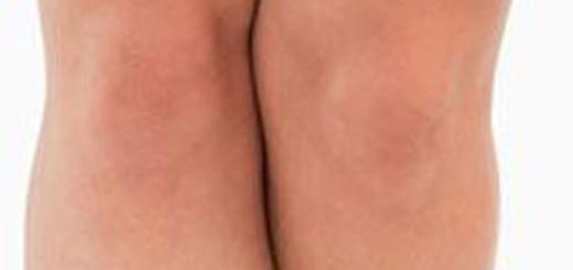 Как убрать жир над коленями: полезные советы, убрать целлюлит на ...