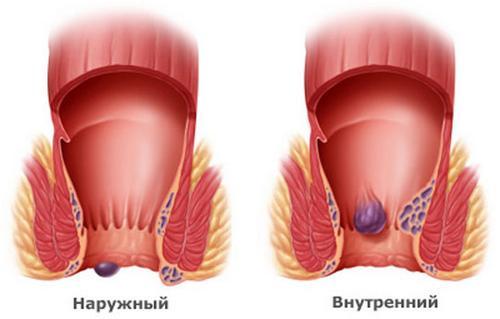 Кожный зуд: виды, причины, признаки, симптомы, лечение