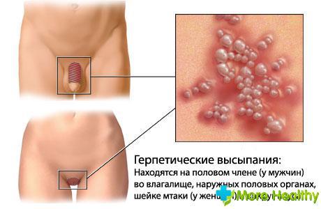 Зуд и покраснение половых губ – признак инфекции