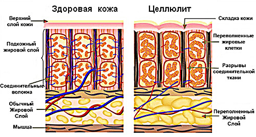 Баночный массаж от целлюлита - Красота и здоровье - www.calorizator.ru