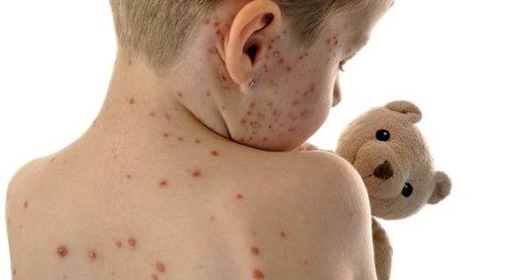 Инфекционный дерматит - лечение болезни. Симптомы и профилактика ...