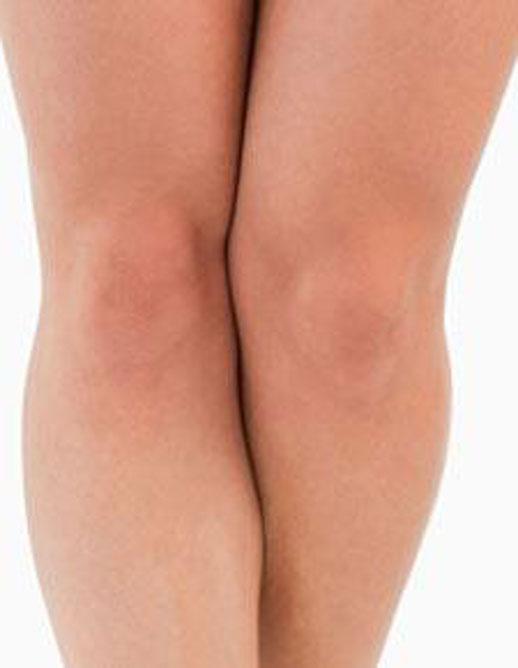Целлюлит на коленях