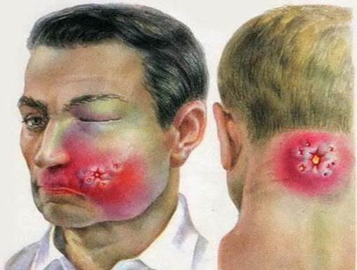 Карбункул: виды, причины, симптомы (+фото) и лечение