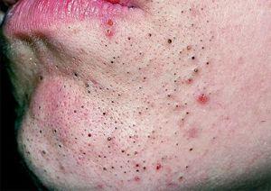 Прыщи (комедоны, угри, акне) на лице и теле: виды, причины, лечение