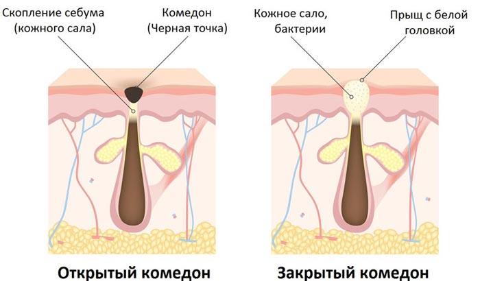 Комедоны на лице: причины, виды и способы лечения