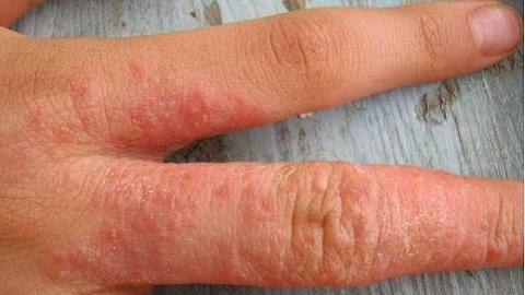 Лечение дерматита на руках: рекомендации по выбору средств