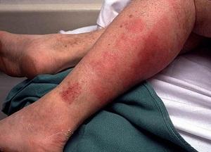 Лечение рожи на ноге в домашних условиях: лучшие народные средства ...