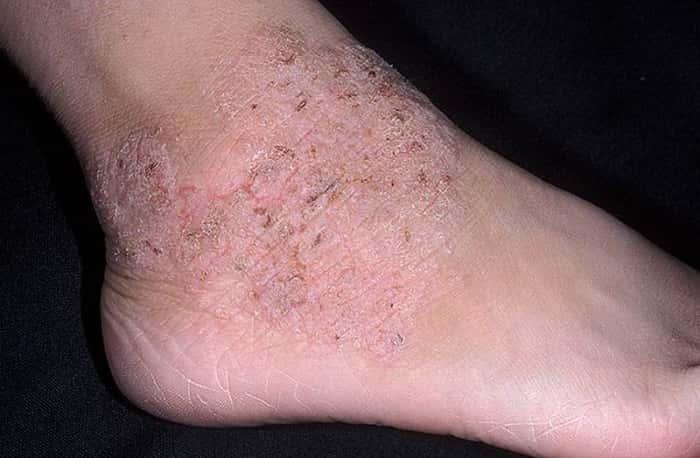 Дерматит на ногах: симптомы и лечение дерматита
