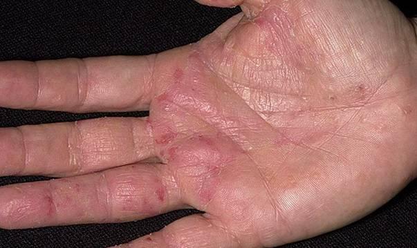 Как выглядит дерматит на руках: фото, причины заболевания